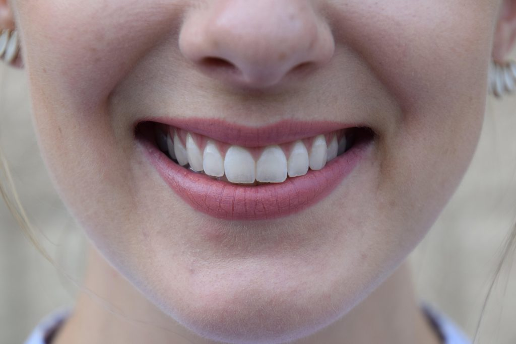 At Home Teeth Whitening Kit, Professional Teeth Whitening, Smile brilliant, at home teeth whitening, sensitize teeth whitening, brighter smiler, professional teeth whitening at home, teeth whitening review